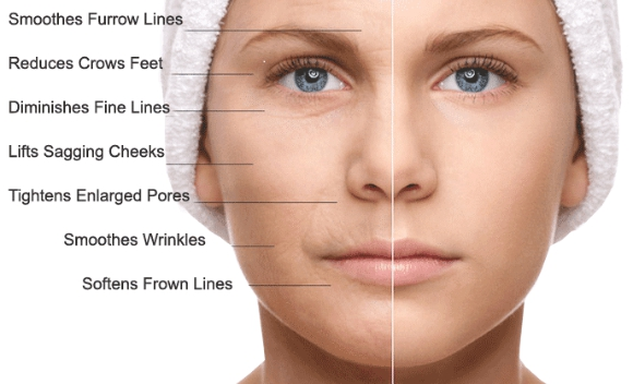 Cell Therapy for Face Rejuvenation