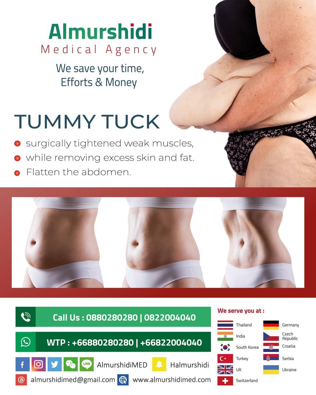 Tummy Tuck or Abdominoplasty in Bangkok, Thailand   Almurshidi ...