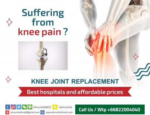 Best Knee Joint Replacement Surgery Cost