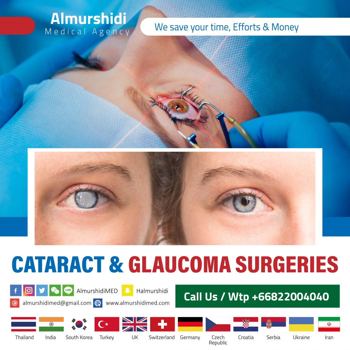 Best Cataract and Glaucoma Treatment and Surgery
