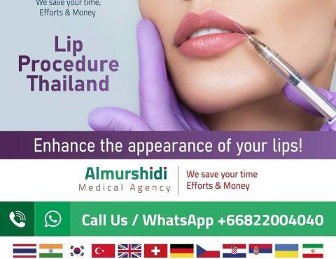 Best Lip Augmentation Surgery Cost in Thailand