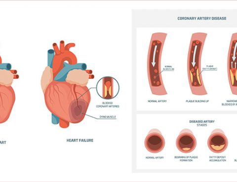 Coronary Heart Disease Diagnosis and Treatment