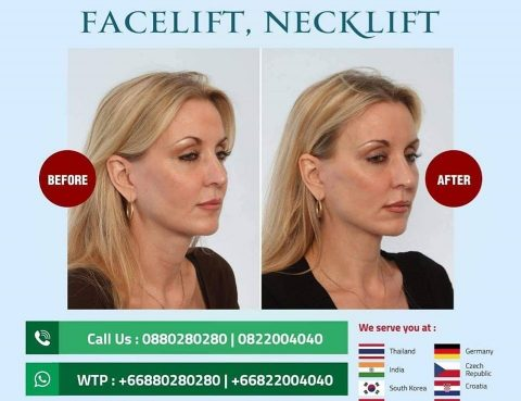 Best Facelift and Necklift Cost in Thailand