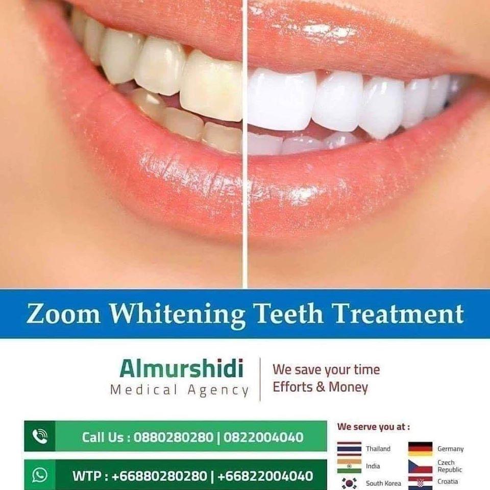 Best Zoom Teeth Whitening in Thailand