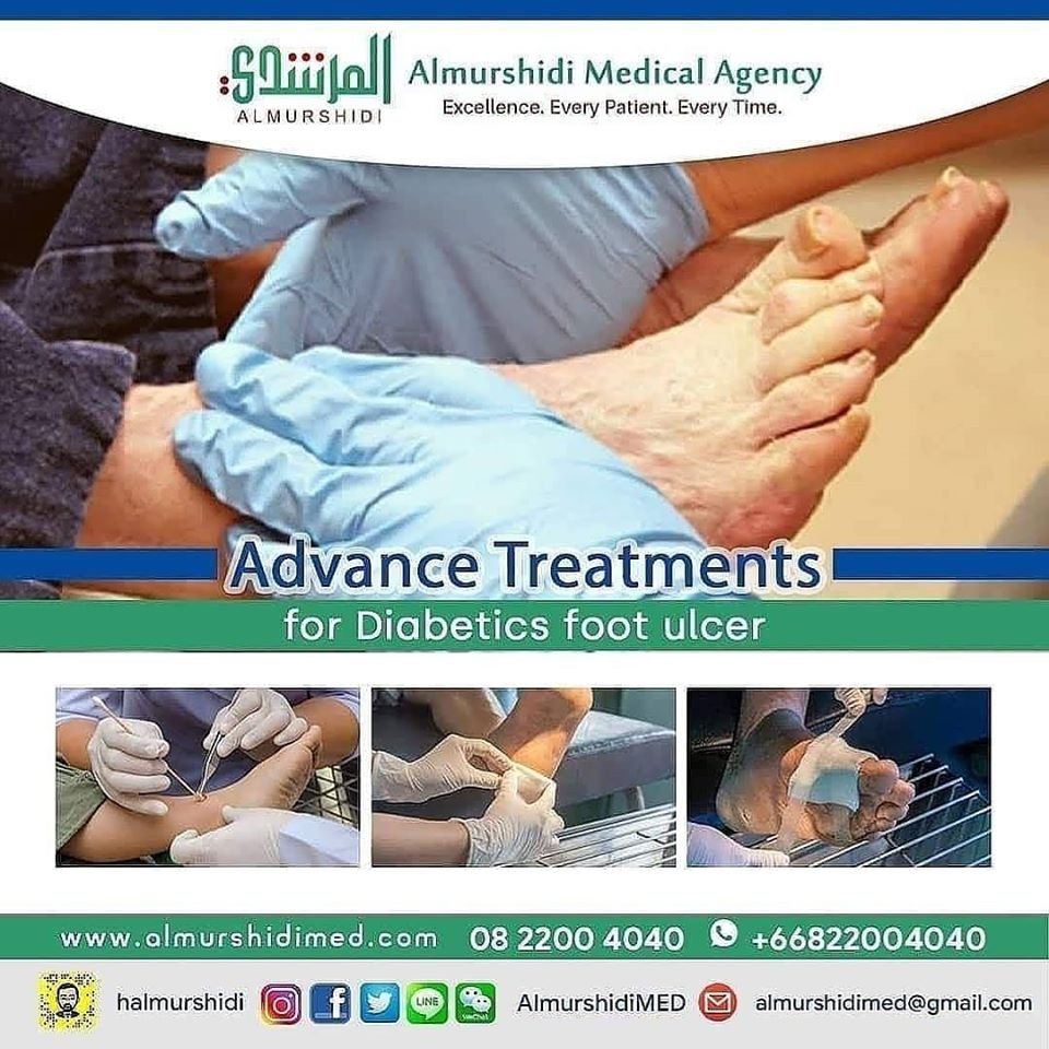Diabetic Foot Ulcer Diagnosis And Treatment In Thailand