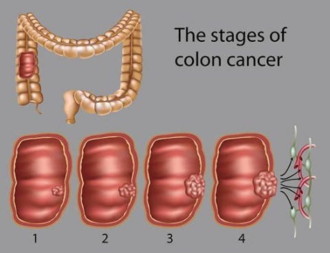 Colon Cancer Diagnosis and Treatment in Thailand