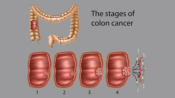 Colon Cancer Diagnosis And Treatment In Thailand Almurshidi Medical Tourism Agency Hospitals In Thailand