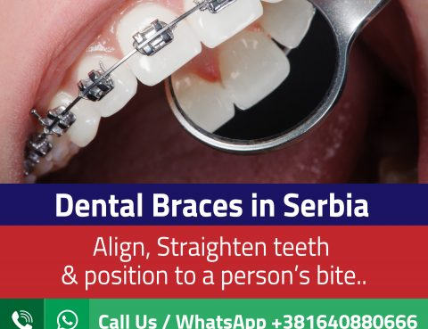 Dental Braces Cost