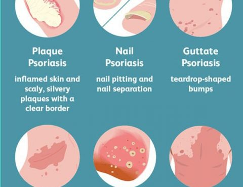 Psoriasis Diagnosis and Treatment in Thailand