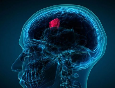 Best Brain Tumor Diagnosis and Treatment in Thailand