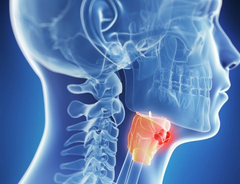 Laryngeal Cancer Diagnosis and Treatment in Thailand