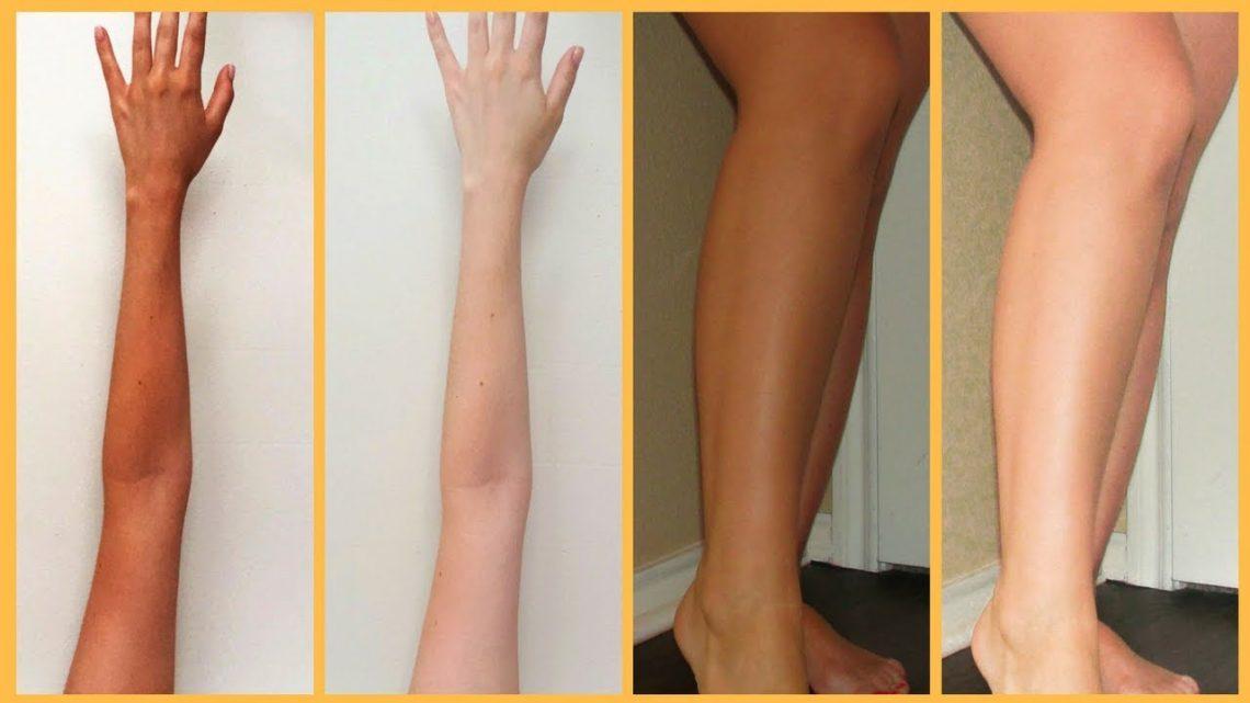 Skin Whitening and Bleaching in Thailand
