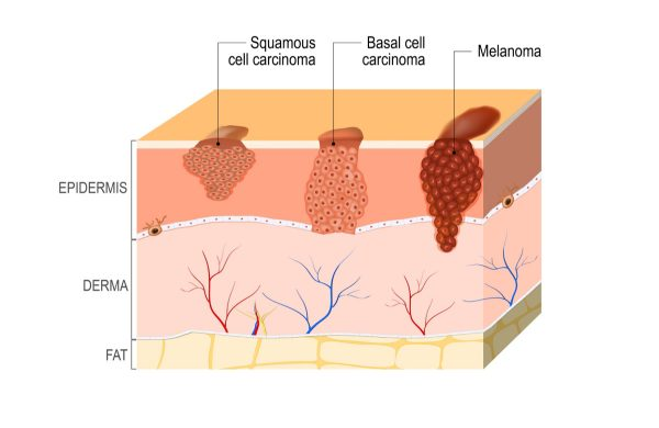 Skin Cancer Diagnosis And Treatment In Thailand Almurshidi Medical Tourism Agency Hospitals In Thailand