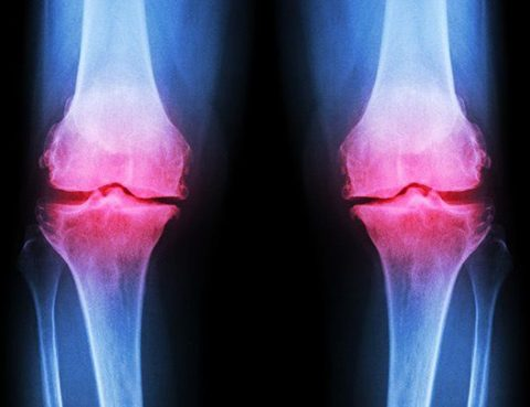 Best Treatment for Osteoarthritis in Thailand