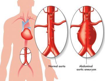 Abdominal Aortic Aneurysm Treatment in Thailand