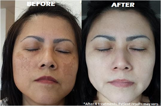 Hyperpigmentation Treatment in Thailand