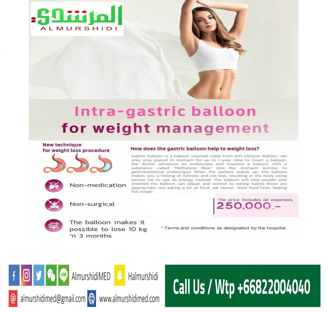 Intragastric Balloon for Weight Management in Thailand