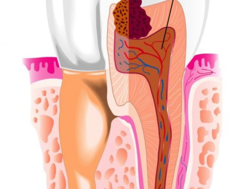 Dental Abscess Treatment in Thailand