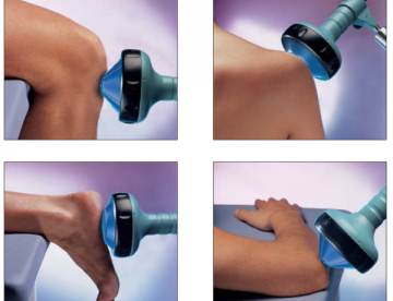 Best Shockwave Therapy Cost in Thailand