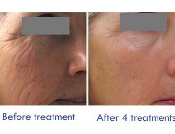 Dermapen Facial Treatment in Thailand