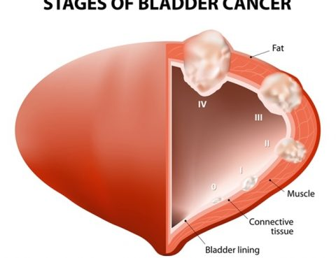 Bladder Cancer Treatment in Thailand