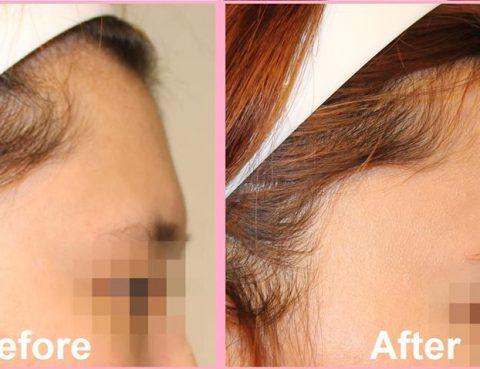 Best Forehead Augmentation in Thailand