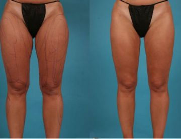 Best Thigh Lift Cost in Thailand