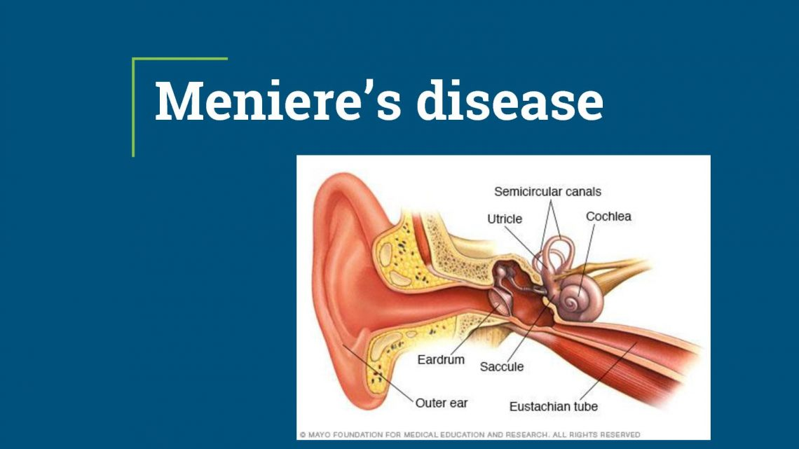 Menieres Disease Treatment in Thailand