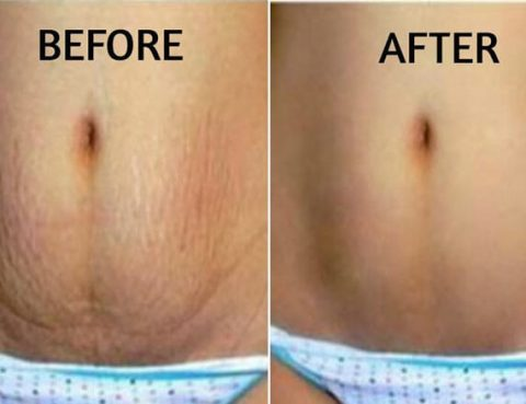 Best Stretch Marks Removal in Thailand