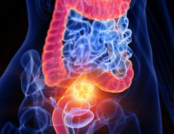 Ulcerative Colitis Treatment in Thailand