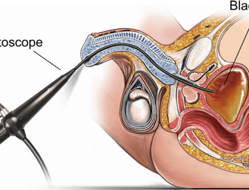 Best Cystoscopy Surgery in Thailand