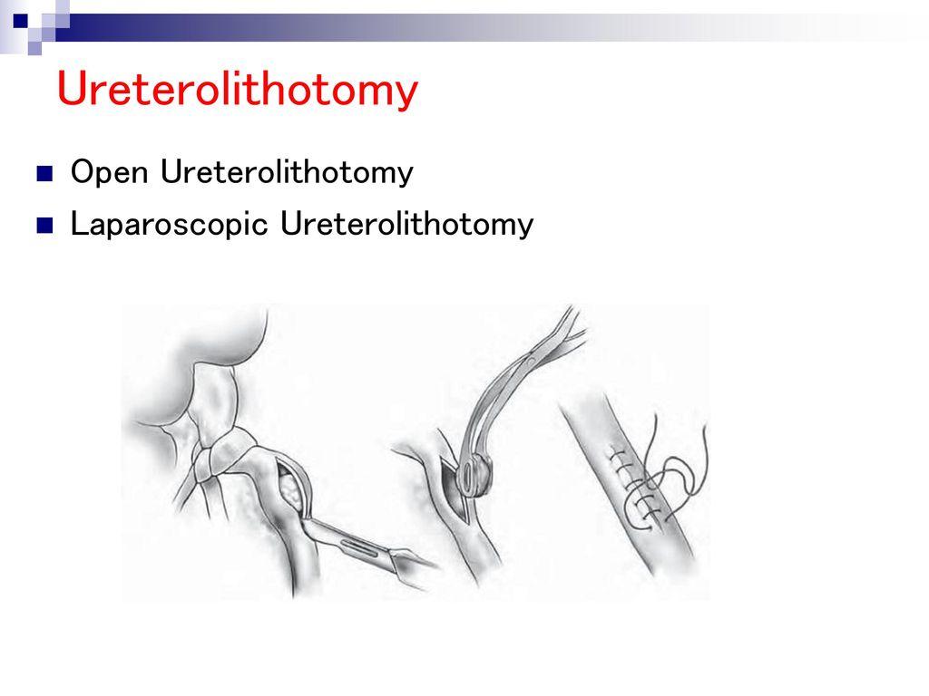 Best Ureterolithotomy Surgery in Thailand