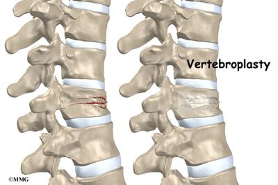 Vertebroplasty in Thailand