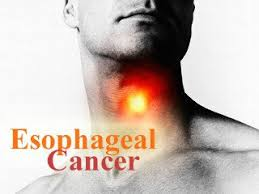 Esophageal Cancer Treatment in Thailand