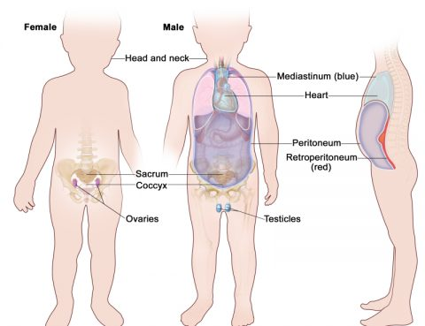 Ovarian Cancer Archives Almurshidi Medical Tourism Agency Hospitals In Thailand