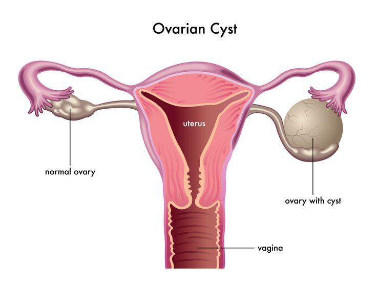 Ovarian Cyst Treatment in Thailand