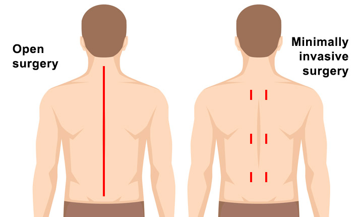 Minimally Invasive Spine Surgery in Thailand