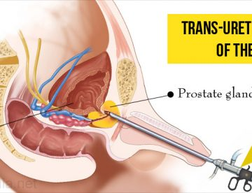 Transurethral Resection of the Prostate Surgery in Thailand