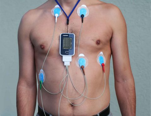 Holter Monitor in Thailand