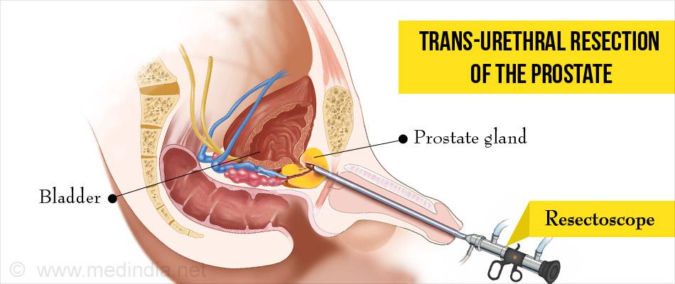 Pszichoszomatikus prostatitis férfiakban Amikor a prosztatát keresik