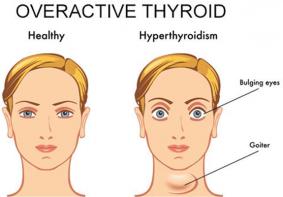 Overactive Thyroid Treatment in Thailand