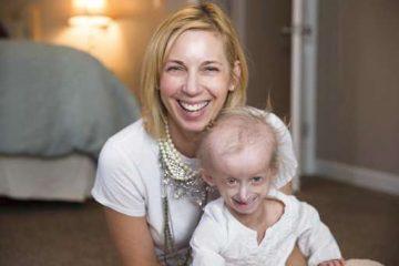 Progeria Diagnosis and Treatment in Thailand