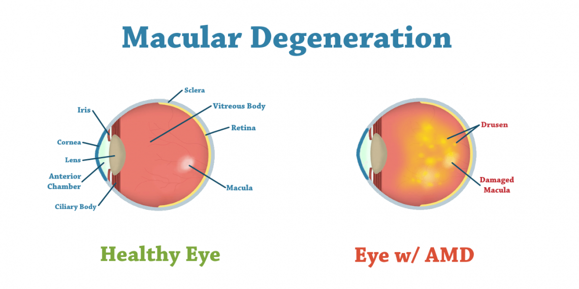 Macular Degeneration Treatment in Thailand