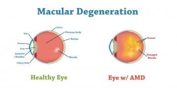 Macular Degeneration Treatment in Thailand