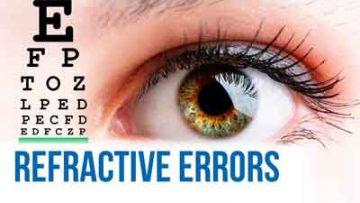 Refraction Error Treatment in Thailand