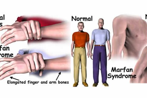 Marfan Syndrome Diagnosis and Treatment in Thailand