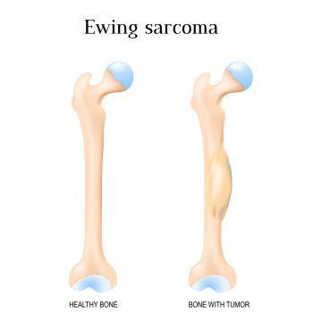 Ewing Sarcoma Treatment in Thailand