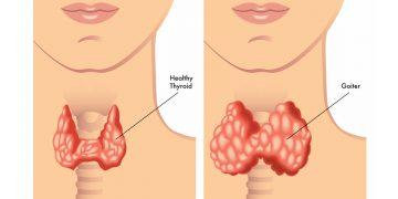 Hypothyroidism Treatment in Thailand