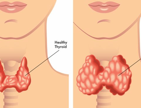 Hypothyroidism Treatment in Thailand