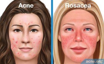 Rosacea Treatment in Thailand